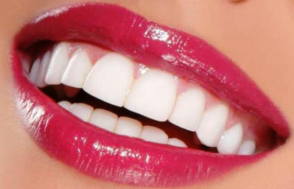 لبخند هاليوودی