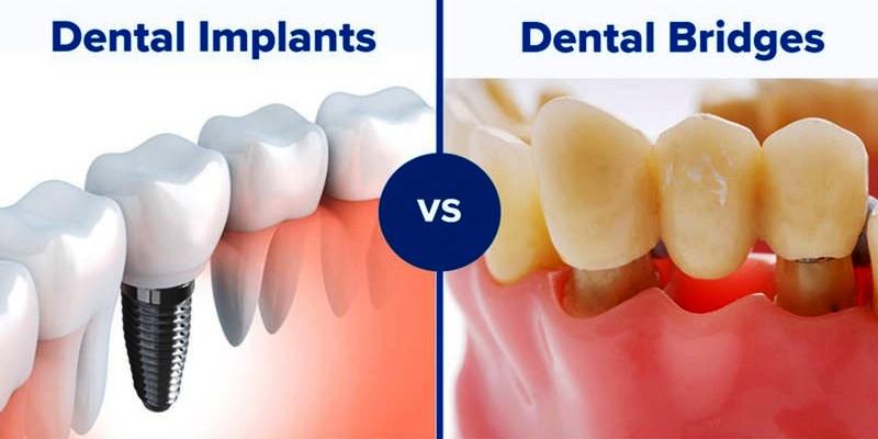 ایمپلنت دندان و بریج دندان
